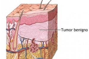 Detección precoz del cáncer de piel